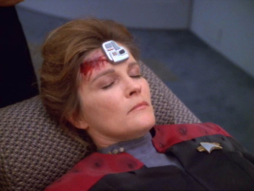 Janeway in sickbay with bloody head and cortical stimulator