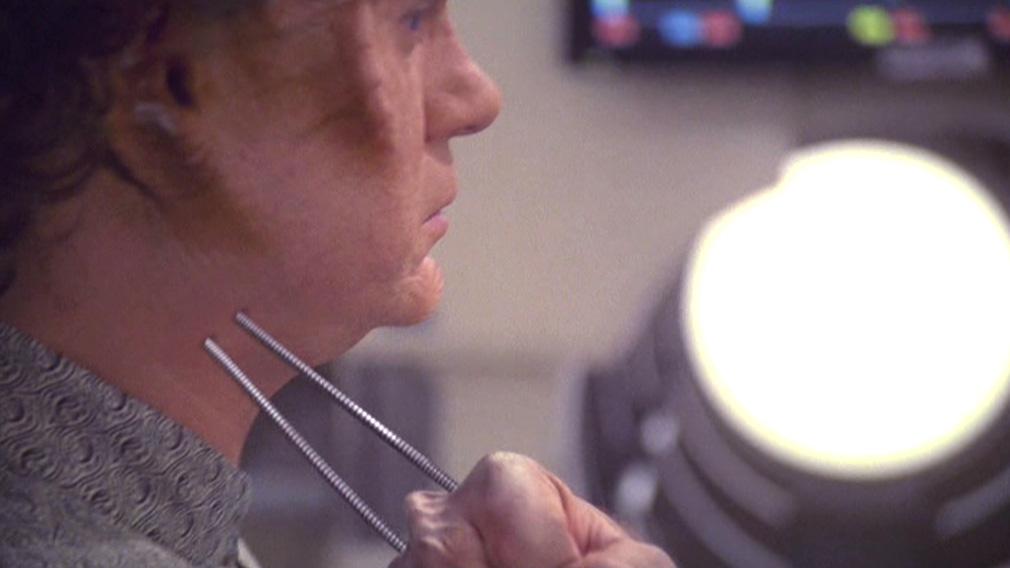 Borg probes going into Phlox's neck